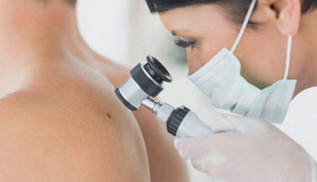 visitar un dermatólogos en Sevilla